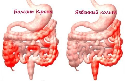 Рубрика симптомы и болезни