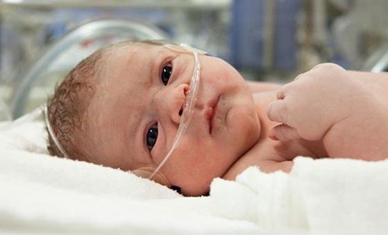 Заворот кишок у новорожденного