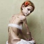 Фото Ксюша Бубенко анорексия
