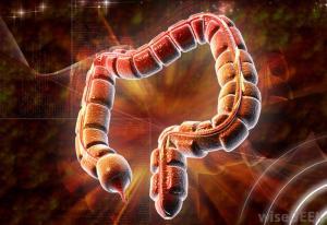 Парез кишечника, паралитическая непроходимость кишечника, симптомы, лечение