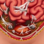 спаечная болезнь брюшной полости