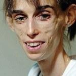 фото анорексия как заболеть