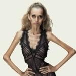 Фото последняя стадия анорексии