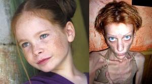 Модель Изабель Каро, умерла от  анорексии
