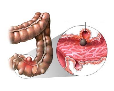 Диветикулит толстой кишки