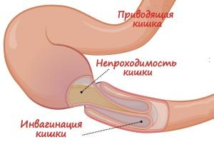 Механмческая кишечная непроходимость, инвагинация