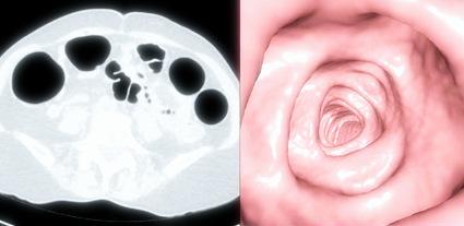 виртуальная колоноскопия