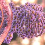 Виды онкомаркеров: существует ли универсальный раковый тест?