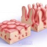 Целиакия у взрослых, симптомы 300 клинических проявлений!